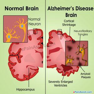 normal and diseased brain