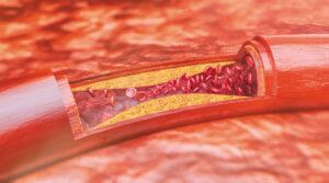 Plaque Artery