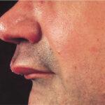 رضوح الفم والأسنان